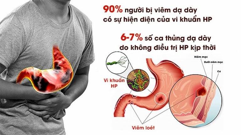 Vi khuẩn HP - Nguyên nhân chính gây nên bệnh dạ dày