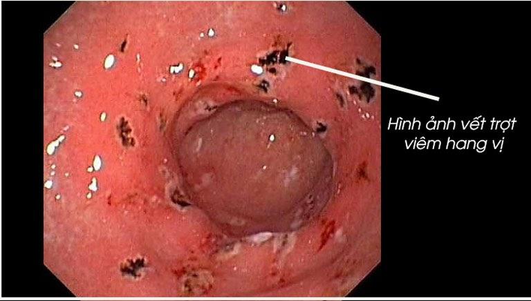 Hình ảnh viêm trợt hang vị dạ dày
