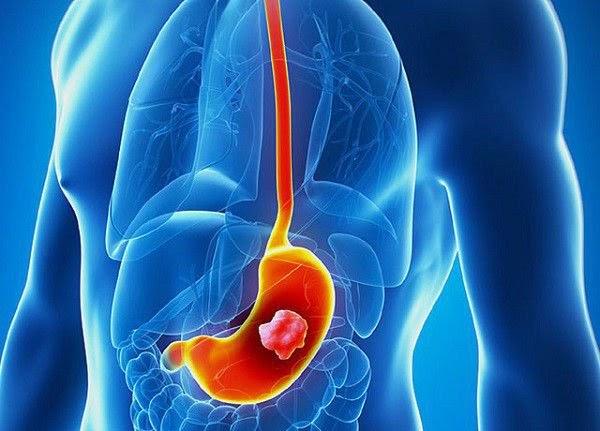 Ung thư là một trong những biến chứng nguy hiểm của viêm trợt hang vị