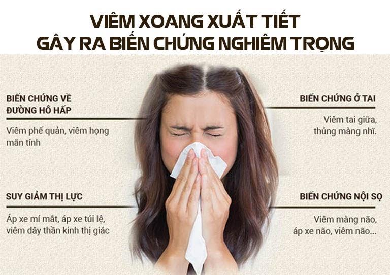 Biến chứng khó lường của viêm xoang mũi xuất tiết