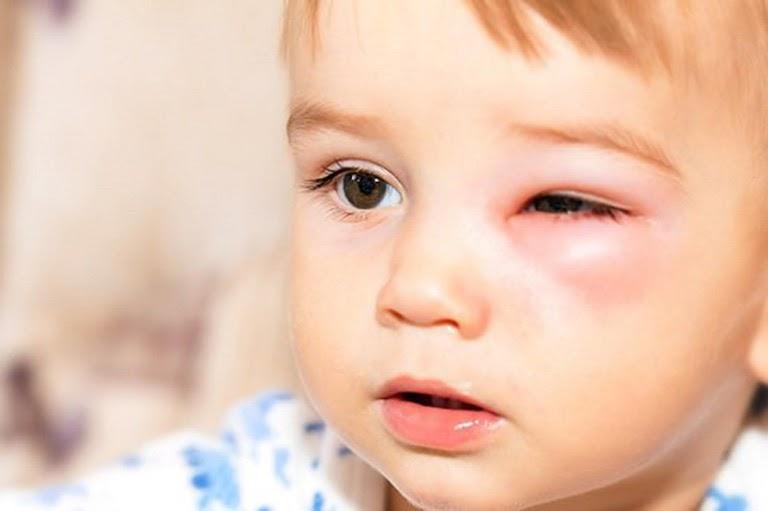 Bệnh viêm xoang có thể gây nên nhiều biến chứng nếu không được điều trị sớm