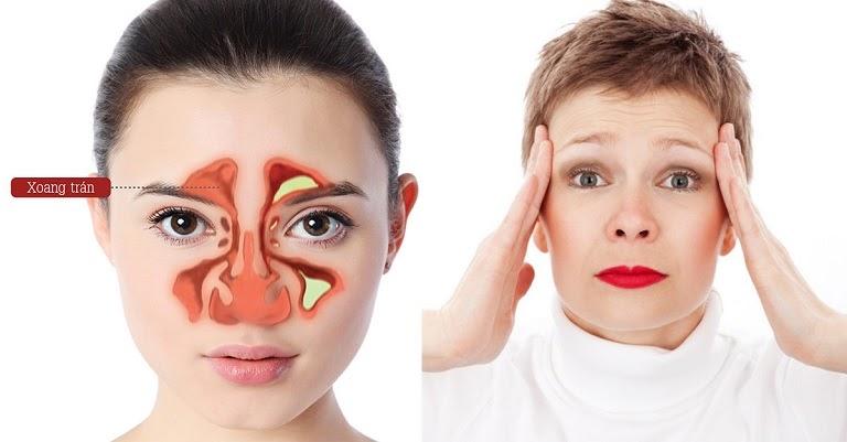 Viêm xoang trán: Điểm mặt triệu chứng, dấu hiệu để chữa TRIỆT ĐỂ