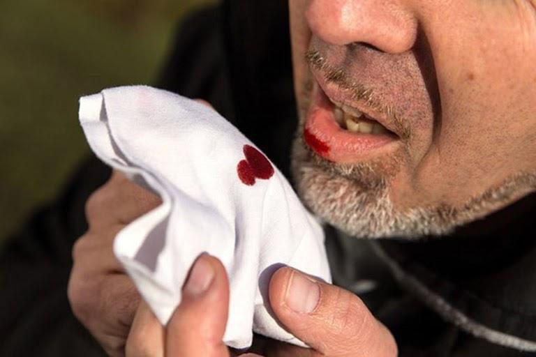 Ho ra máu là tình trạng nguy hiểm cần được đi khám bác sĩ ngay
