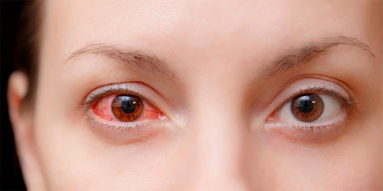 Viêm kết mạc là biến chứng có thể gặp nếu người bệnh thường xuyên bị viêm mũi dị ứng