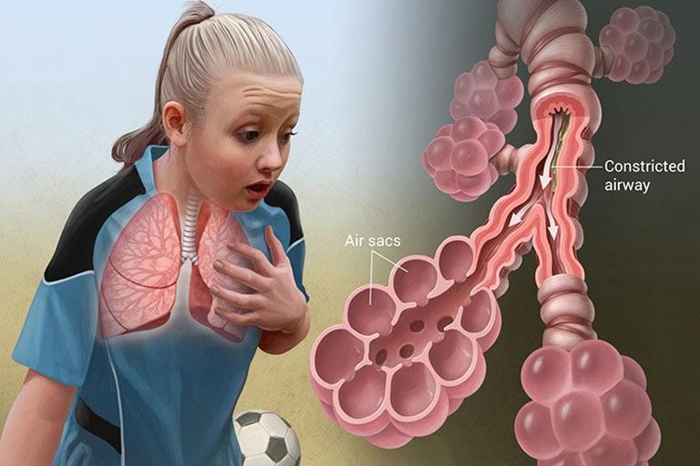 Người bệnh viêm mũi dị ứng lâu năm có thể gặp biến chứng hen suyễn