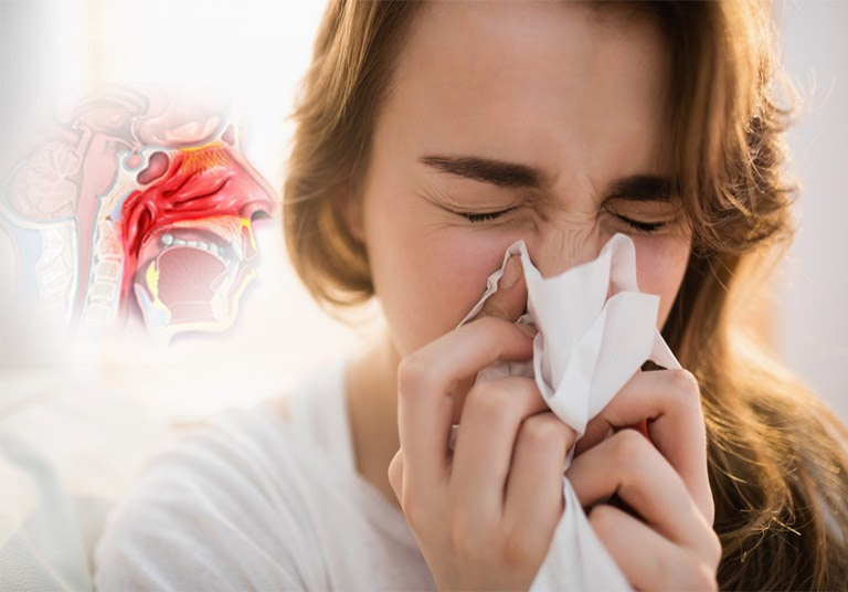 Viêm mũi dị ứng xuất tiết là tình trạng nước mũi chảy nhiều, niêm mạc mũi phù nề...