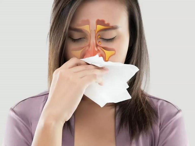 Sổ mũi thường do viêm xoang