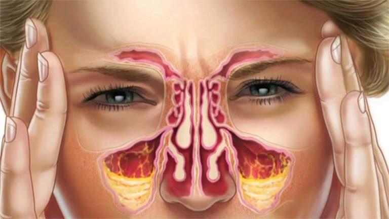 Nghẹt mũi kéo dài có thể dẫn tới hàng loạt bệnh lý tai mũi họng nguy hiểm