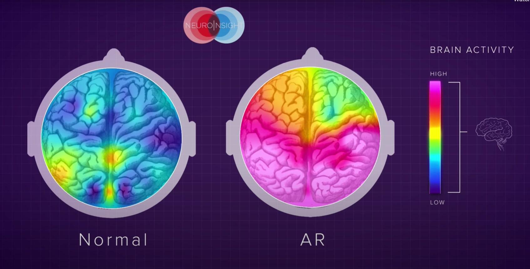custom AR ads on brains