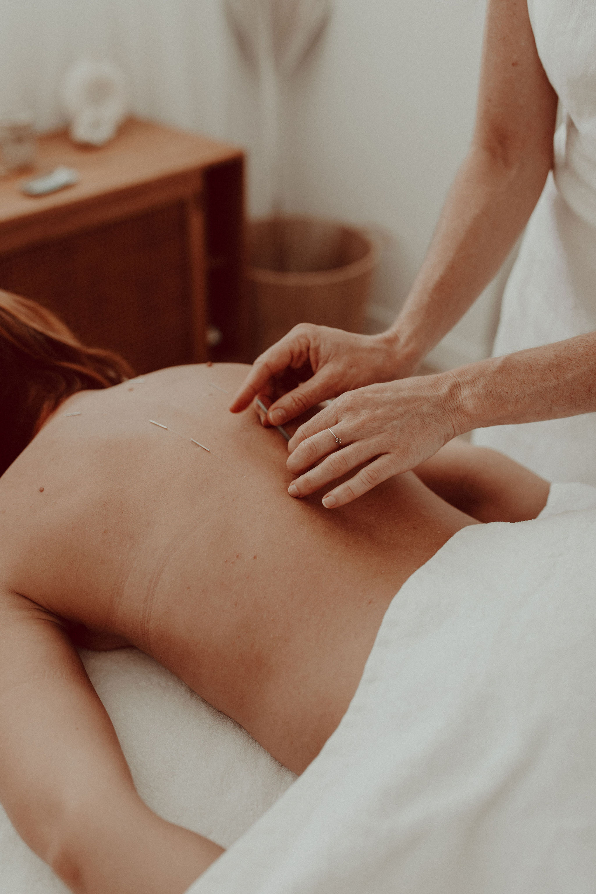 Eva Rose applying an acupuncture treatment to a client