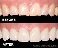 Before and after of dental veneer procedure in Henderson NV