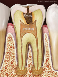 Tooth with decay and infection