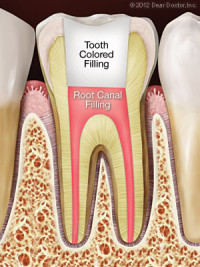 Root canal treatment with tooth-colored filling at Las Vegas dentist