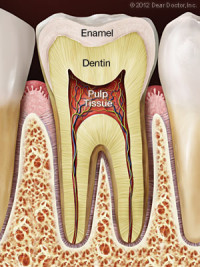 Example of a healthy tooth