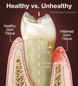 Comparison of health gum tissue and inflamed gum tissue
