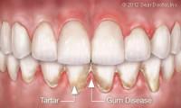 gum disease plaque and tartar buildup