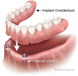 Implant overdenture supported by dental implant available in Henderson NV