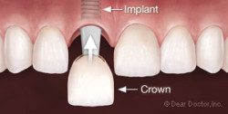 Dental implant insertion with crown