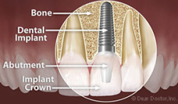 Anatomy of a dental implant with an implant crown in Henderson NV
