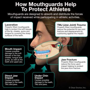 Diagram of how a mouthguard from your Las Vegas dentist can protect your mouth