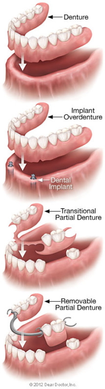 Full conventional dentures, overdentures, and partial dentures in Henderson NV