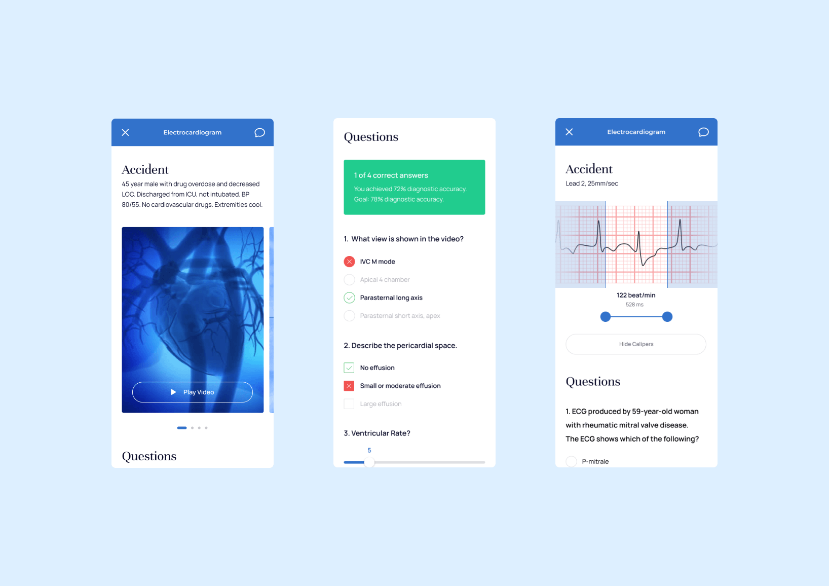 Tests in TM mobile app