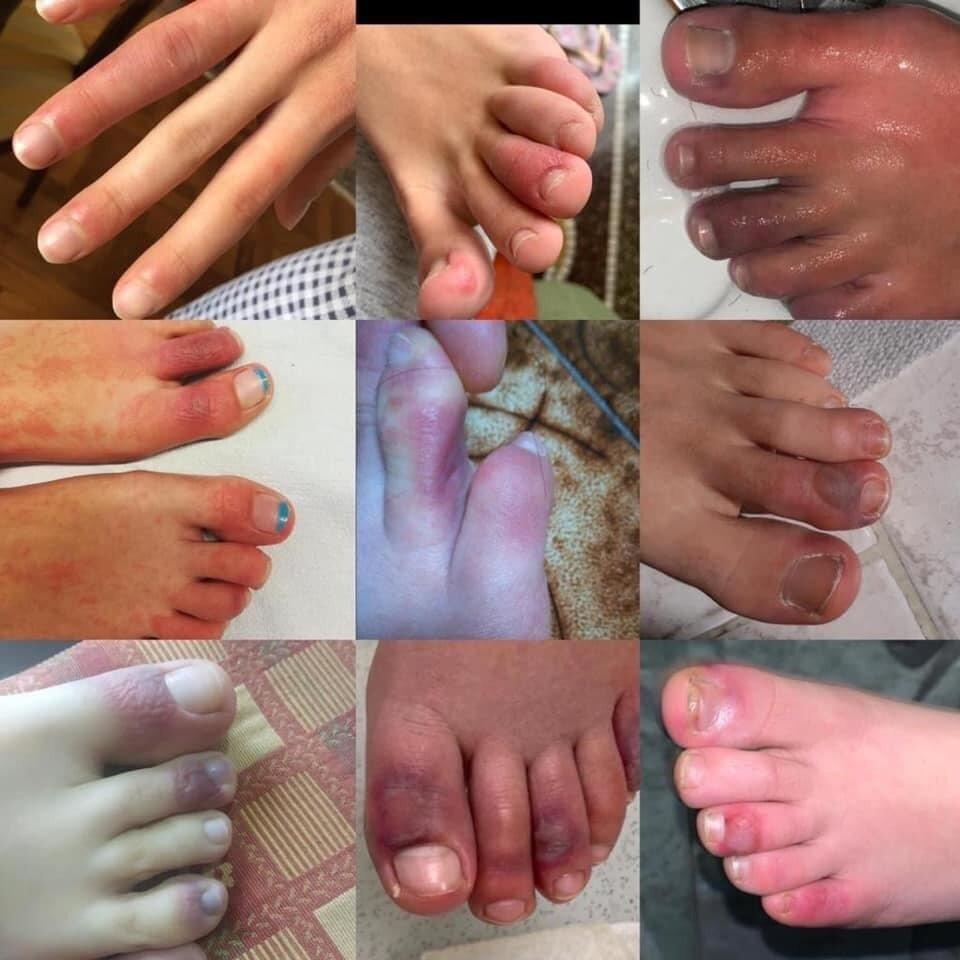 Coronavirus Skin Rashes