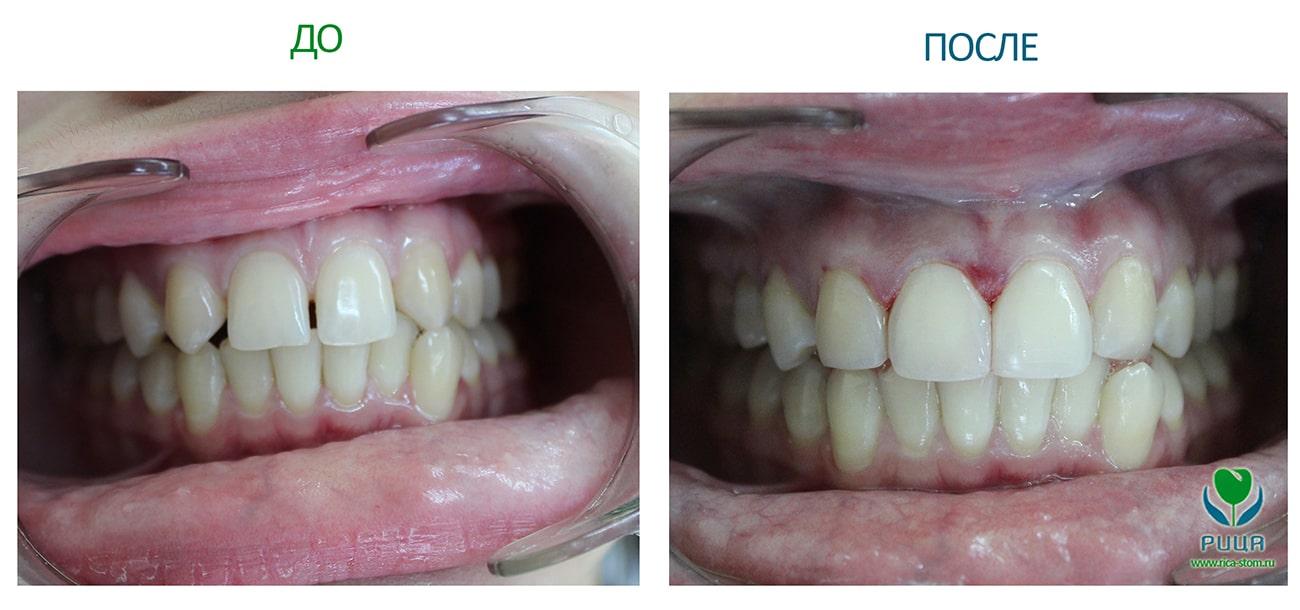 Эстетическое протезирование в стоматологии Рица