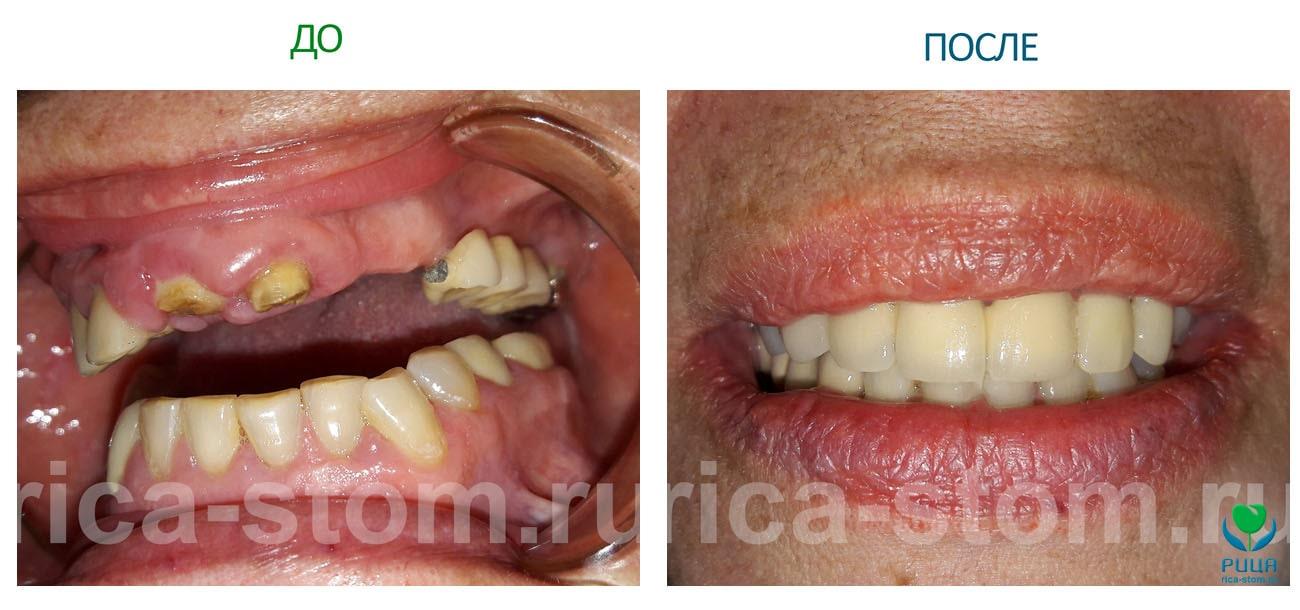Комплексное восстановление зубного ряда в стоматологии Рица