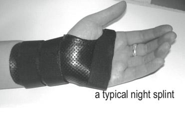 A typical night splint