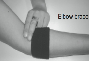 Elbow brace applied to the right arm