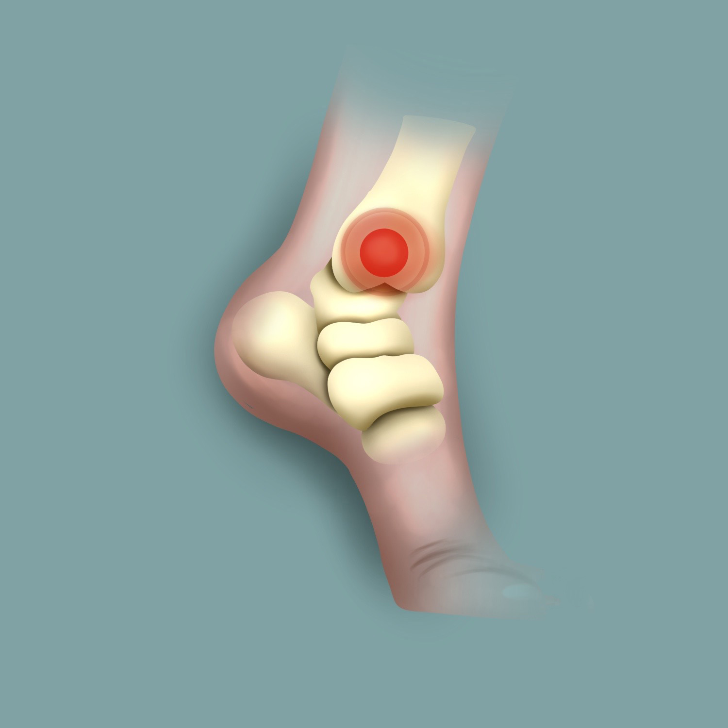 Foot/ankle pain