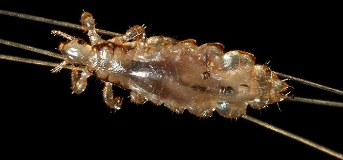 Can You Suffocate Head Lice?