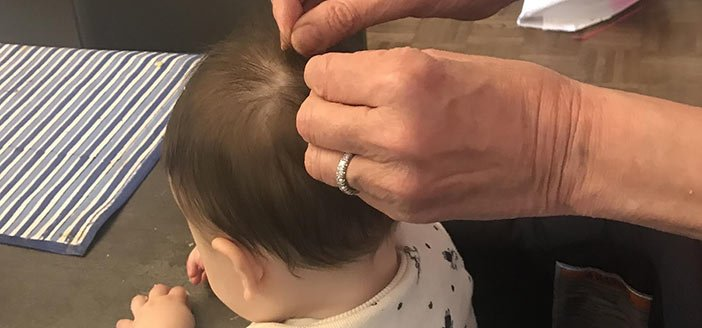 What To Do If My Baby Has Lice?