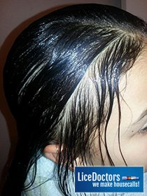 How to Get Rid of Lice or When to Bring in a Lice Professional