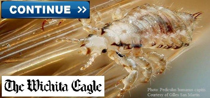 Wichita Eagle Interviews LiceDoctors Owner Karen Sokoloff About Super Lice