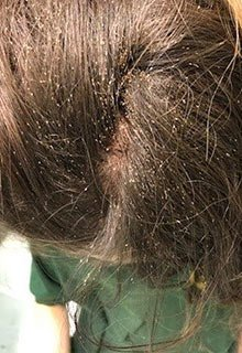 lice tips long term lice infestation bad untreated