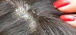 lice tips visible symptoms dandruff flakes itching scalp