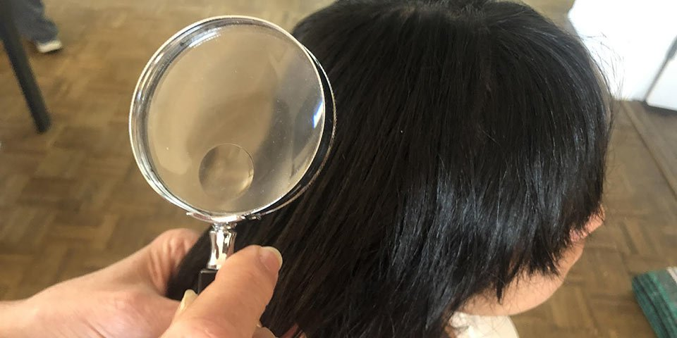 lice tips identify what do eggs nits look like