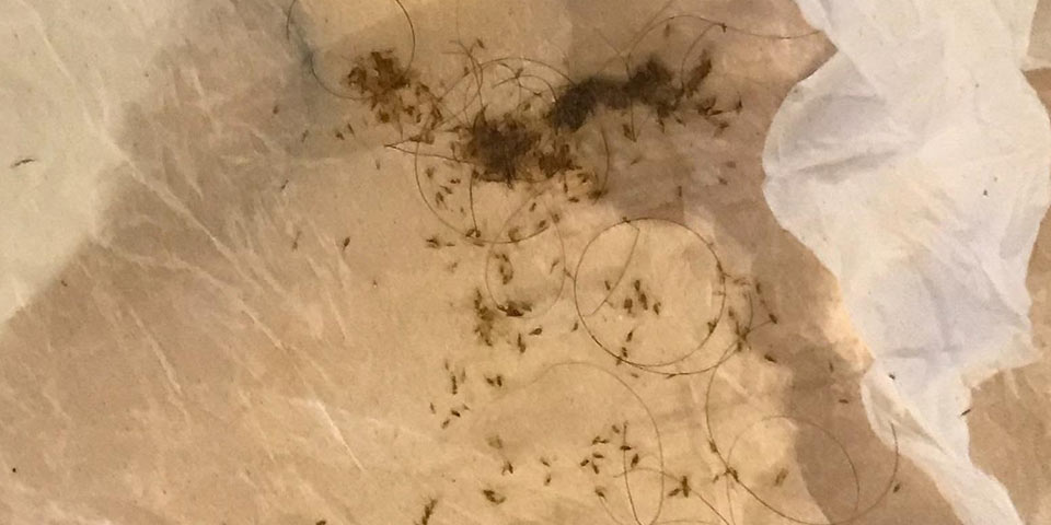 lice tips major severe lice infestation untreated thousands