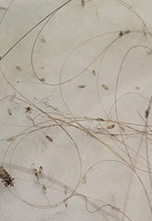 roslyn identify what do head lice bugs eggs nit look like