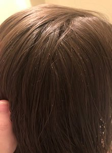 Chicago lice treatment nits and eggs in hair