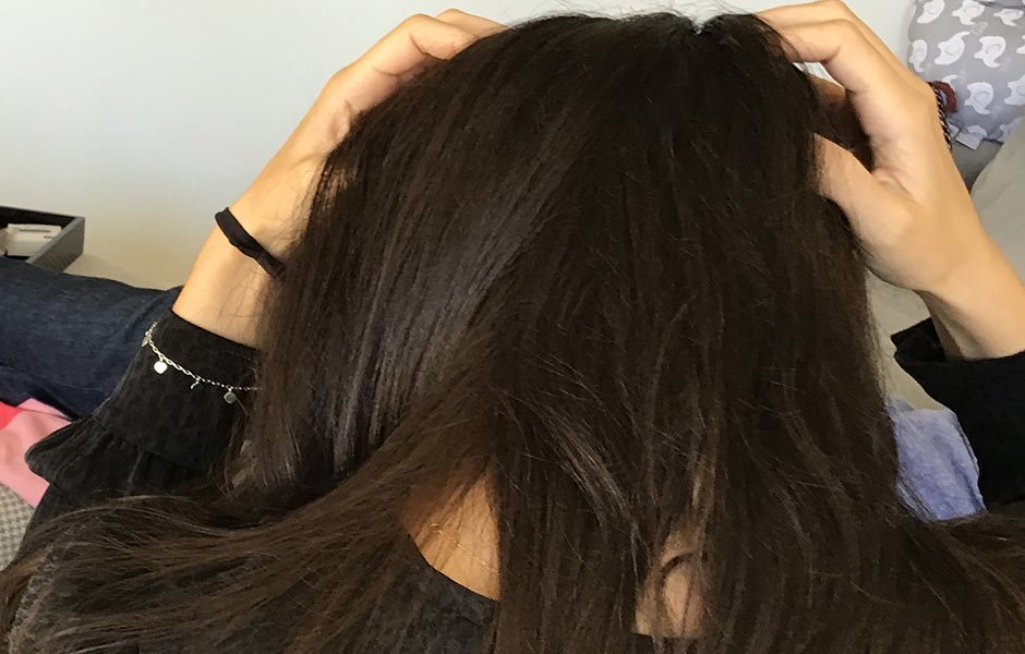 Chicago lice treatment head scratching long hair