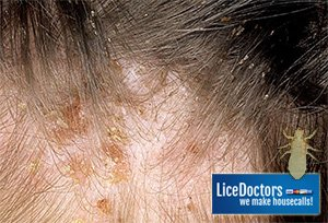close up image of hair with active severe case of head lice including scabs on scalp