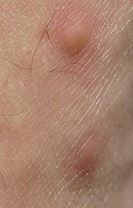 bumps of inflamed skin reaction to insect bites