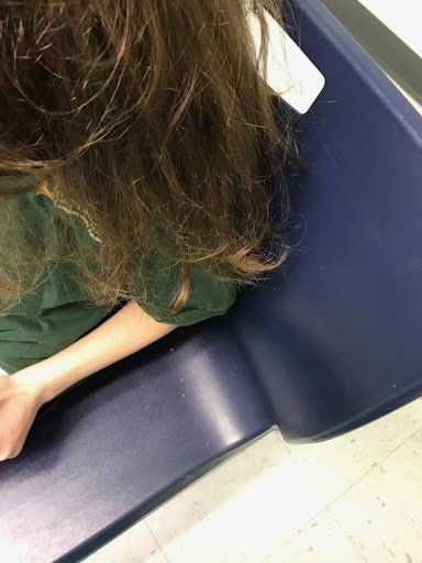 downward view of dry brown hair cleared of head lice after severe infestation and oil treatment.