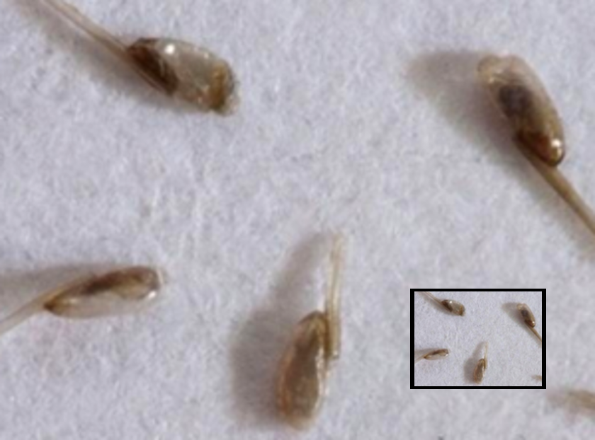 microscopic close up of lice eggs nits