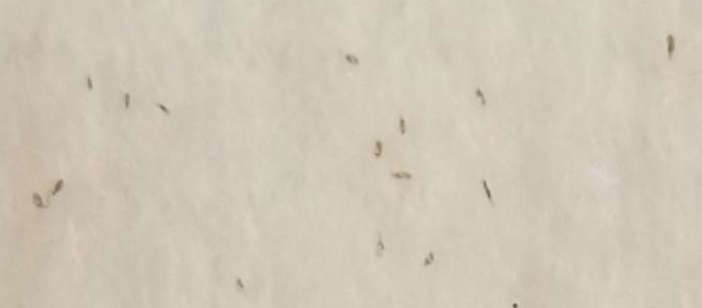 white paper towel speckled with tiny louse nits eggs