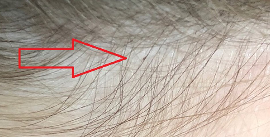 birmingham lice treatment egg nit look like on hair