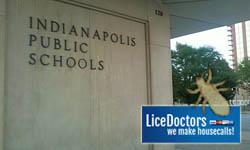 Indianapolis_school_lice_policy